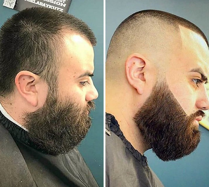 before-after-beard-transformations-47-5c41c66e85859__700