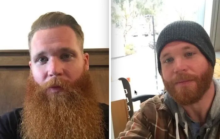 before-after-beard-transformations-10-5c3f248f48224__700